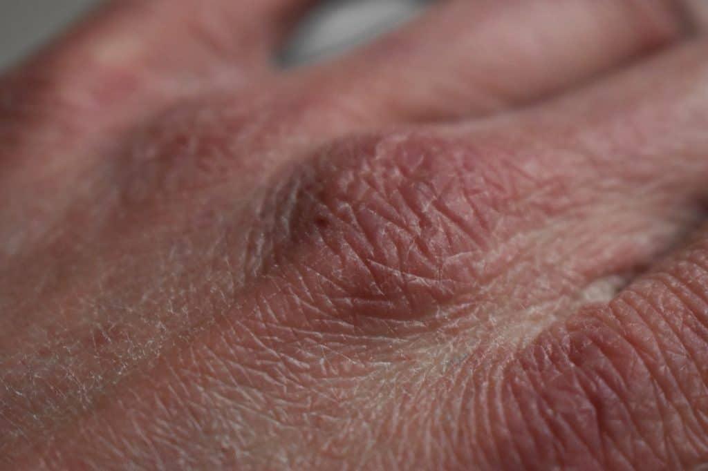 droge handen door vaak handen wassen